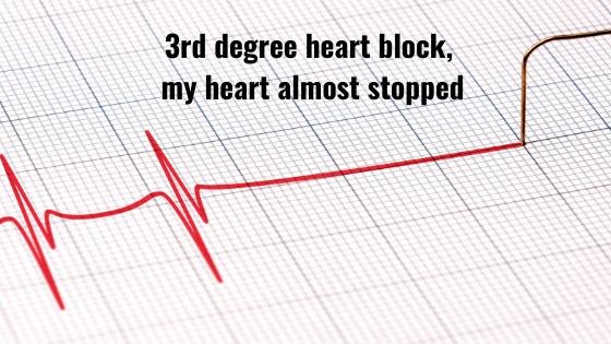 icd-surgery-third-degree-heart-block